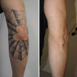 Clear Out Ink Laser Tattoo Removal - $50