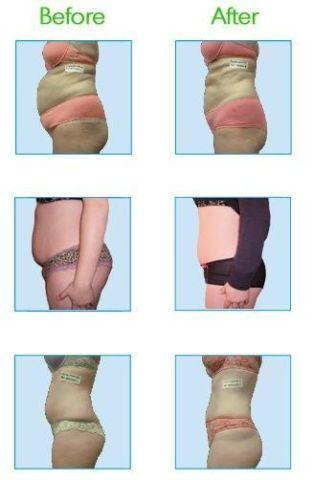 i-Lipo treatment package - 8 sessions @ local Med Spa